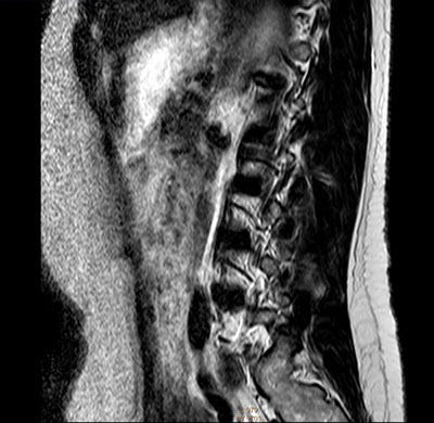 A cross-sectional slice image of the the patient's internal organs and spine obtained with magnetic resonance imaging. The image is a cross-section of the side of the patient, taken from the hip up to the chest level in the vertical direction.